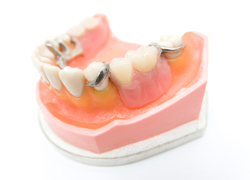 まずは、保険適用の入れ歯をお薦めします